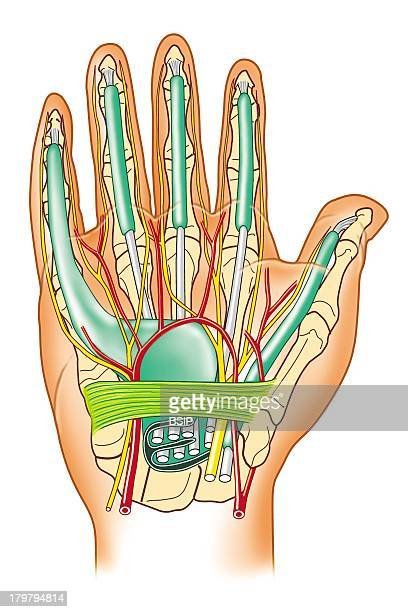 Hand Illustration Palm Of Hand Sheath Of Flexing Tendons Carpal Tunnel
