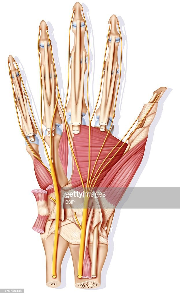 Bone Muscle Tendons And Nerves In Yellow Showing The Ulnar Nerve On The Left And The Median Nerve On The Right This Later Being Responsible For The...