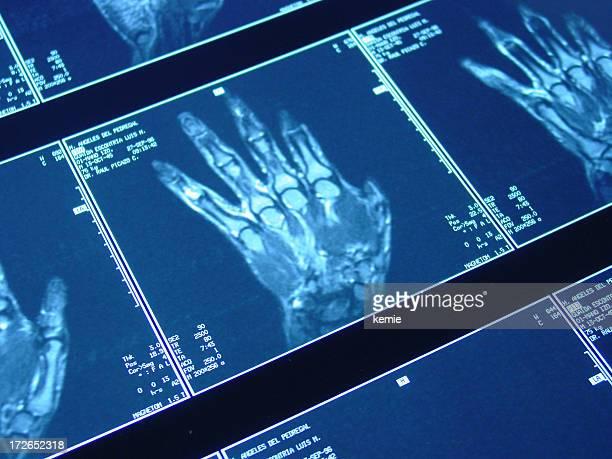 hand MRI