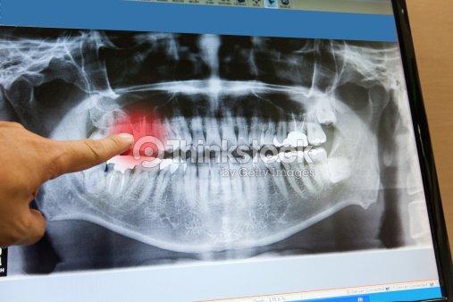 Mano Punto De Vista Panorámica De La Película De Radiografía Dental ...