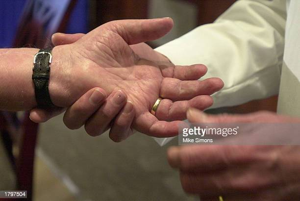 Hand transplant recipient Matt Scott has his transplanted hand looked at by Dr Frederick Bentley at Jewish Hospital February 14 2003 in Louisville...