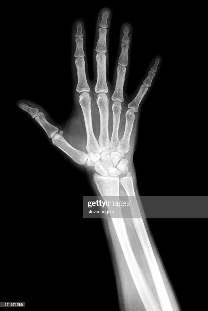 Una radiografia della mano : Foto stock