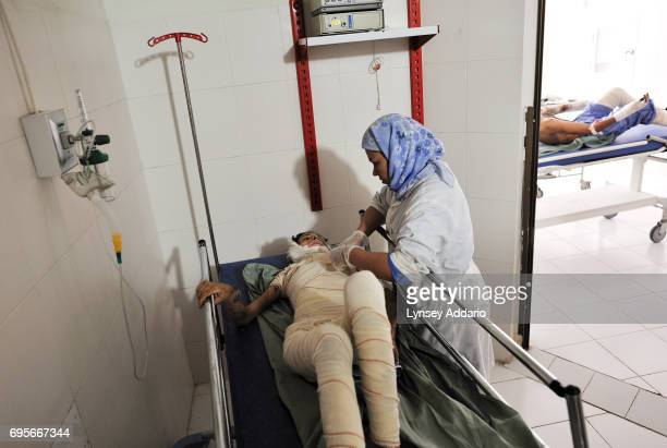Hanife is comforted by nurse Fatima Mohammadi before she has her bandages changed for the first time since undergoing skin graft surgery in the burn...