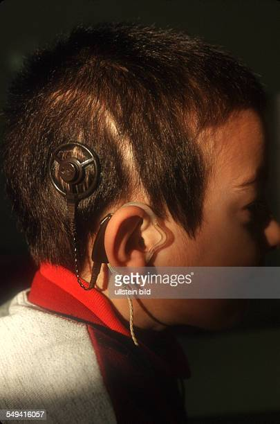Hannover Medical School A cochlear implant is a surgically implanted electronic device that provides a sense of sound to a person who is profoundly...