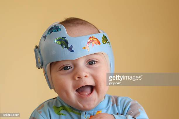 A happy baby boy getting plagiocephaly treatment