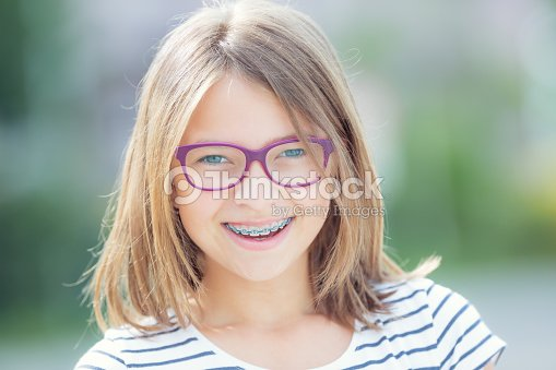 322a637c3af0 Happy smiling girl with dental braces and glasses. Young cute caucasian  blond girl wearing teeth