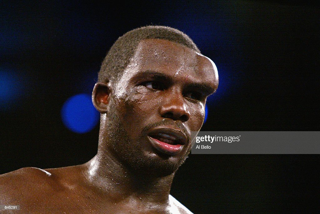 Hasim Rahman shows a bulge on his forehead due to a broken blood vessel after a headbutt by Evander Holyfield during the heavyweight title fight at the Boardwalk Hall in Atlantic City, New Jersey on June 1, 2002. The fight was stopped after the 8th round in Holyfield's favor.