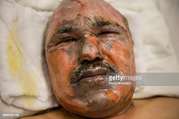 Hatiqullah Sadiq is seen at his hospital bed at the Emergency hospital subICU unit with second and third degree burns on his faceHe was driving home...
