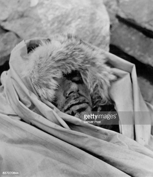 He Looked Into Death's Face This is the battered and grim face of 20yearold Larry Hackstaff of Denver as he was carried down from a peak near Aspen...