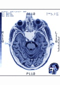 Head MRI Axial Section Of A Human Skull The Brain The Eyes The Sinuses And The Nasal Fossae