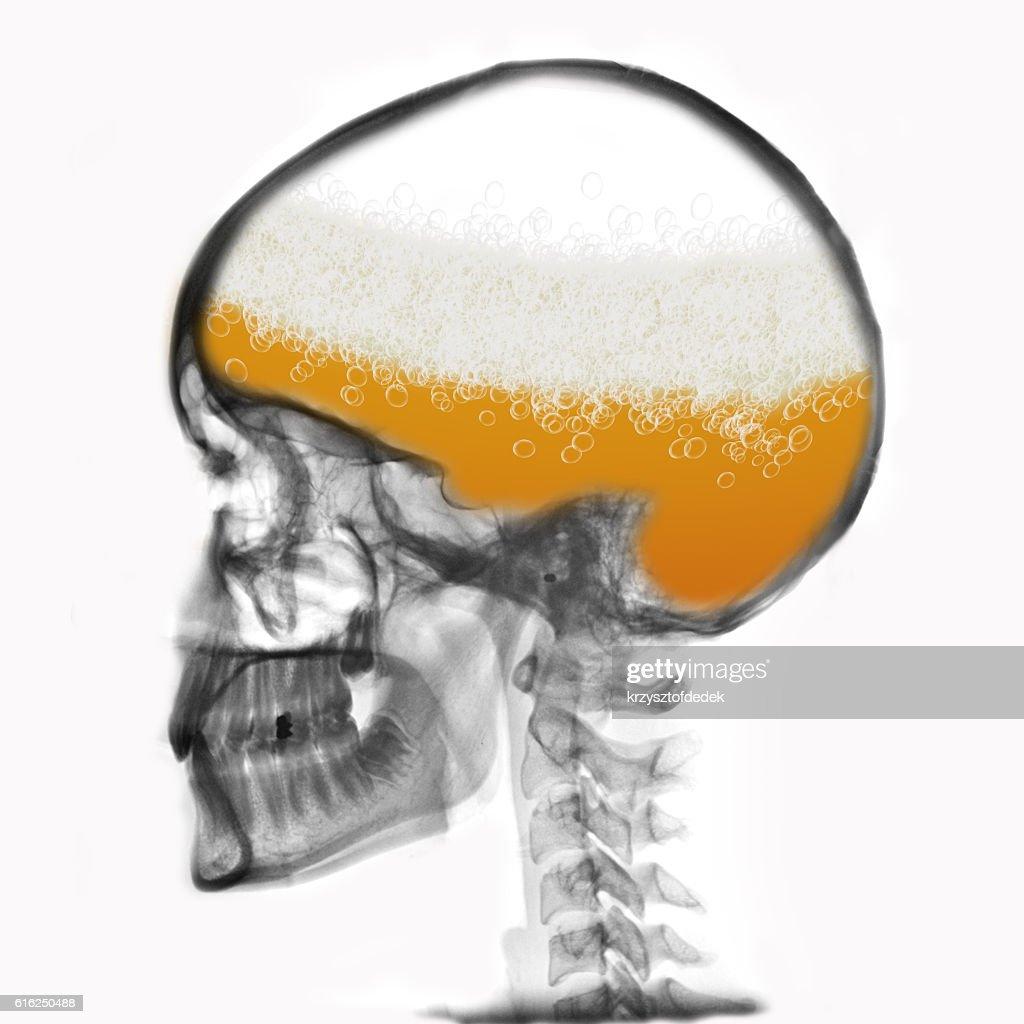 head : Foto de stock