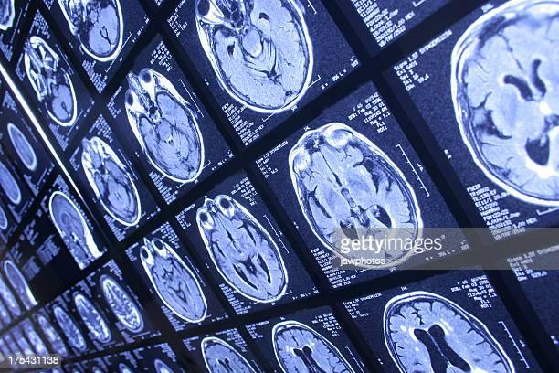 Radiografia de Cabeça