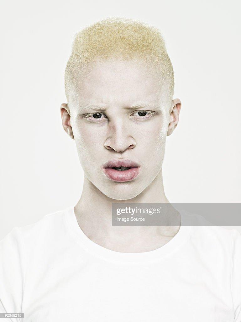Caucasian albino man naked