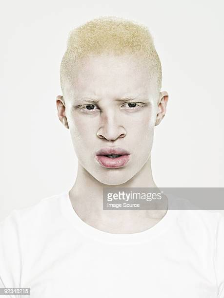 albino stock photos and pictures getty images