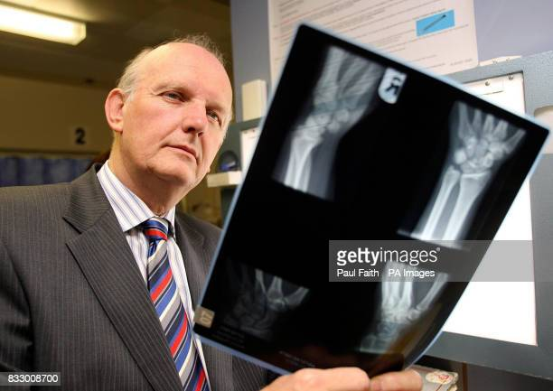 Hospital x ray stock photos and pictures getty images health minister michael mcgimpsey looks at an xray at antrim area hospital ccuart Choice Image