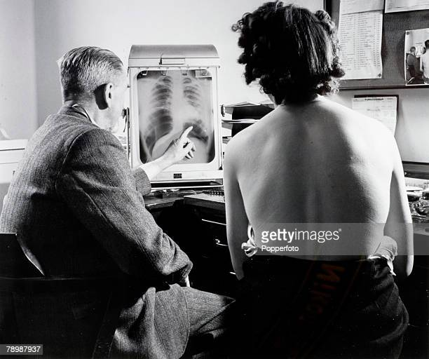 Health National Health Service Great Britain pic July 1948 A patient with a chest specialist at a Bristol health centre as they inspect a chest xray...