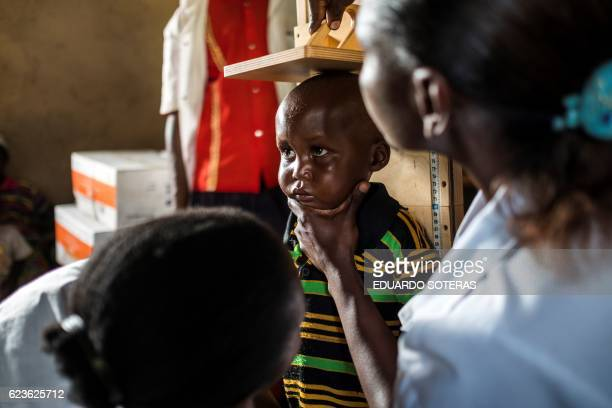 CORRECTION Health personnels measure a child as part of a program for malnourished children sponsored by the World Food Program at a Health Center in...