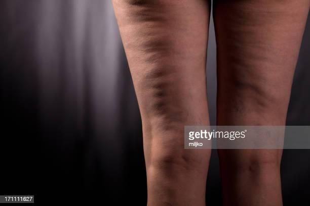 Health problem - cellulite