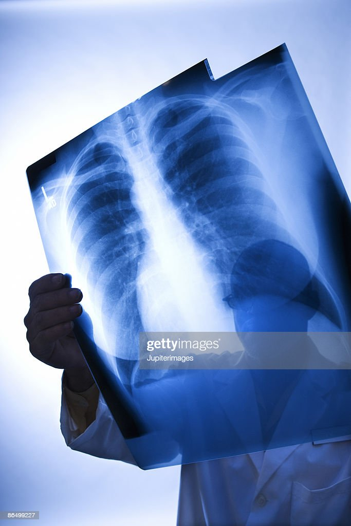Healthcare worker holding up x-ray
