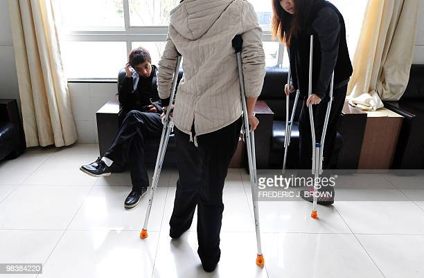 STORY 'HealthChinalifestyleFEATURE' by Pascal Trouillaud Young women walk on crutches after having been operated on by orthopedic surgeon Bai Helong...