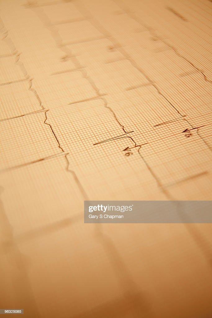 Healthy EKG readout : Stock Photo