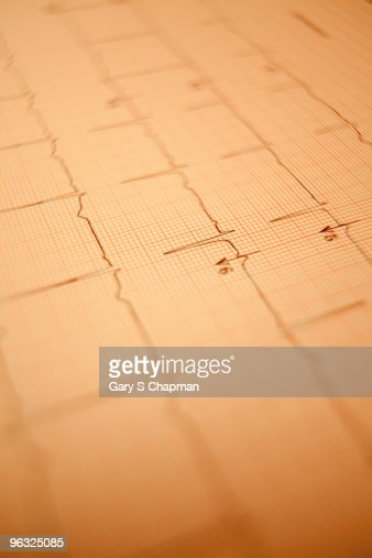 Healthy EKG readout : Foto de stock