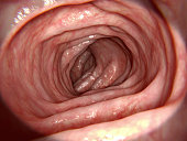 A segment of the colon free of any intestinal disease