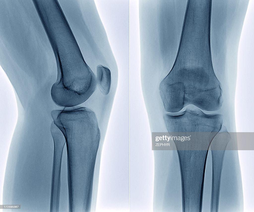 Healthy knee, X-ray