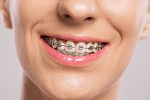 Healthy smile girl with braces