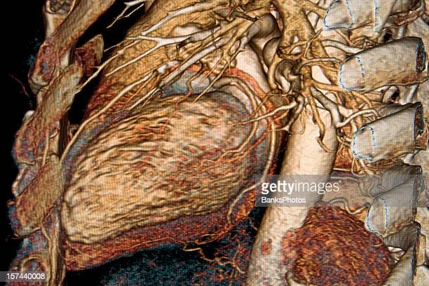 3D Heart CAT Scan Showing Cutaway Ribs