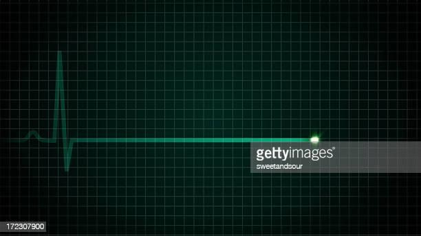 Herz-EKG Flatline