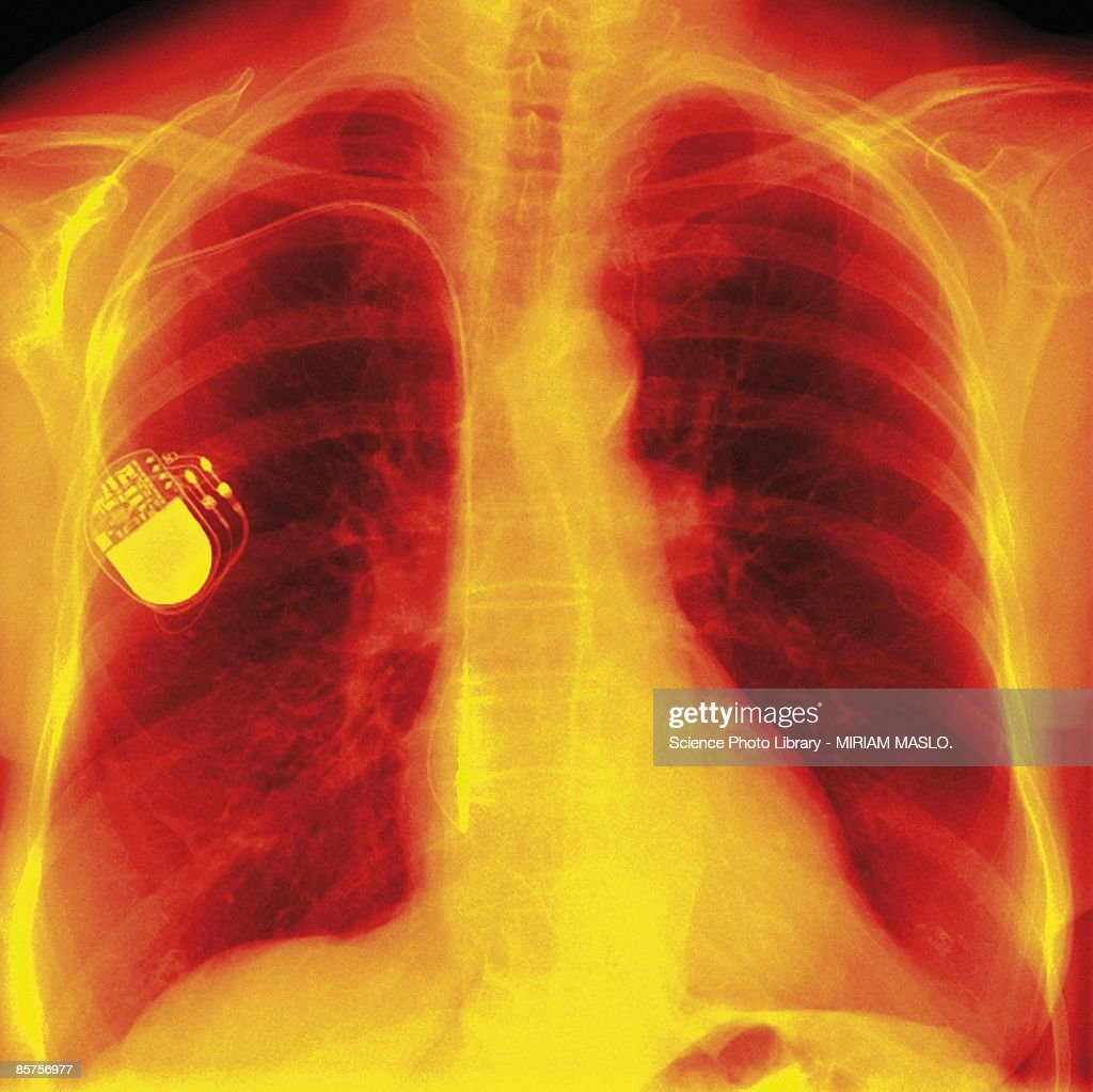 Heart pacemaker, colored frontal X-ray of chest with heart pacemaker : Stock Photo