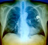 Heart pacemaker x-ray of senior adult man