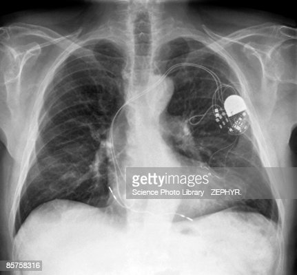 Heart pacemaker x-ray of senior adult man, (B&W)