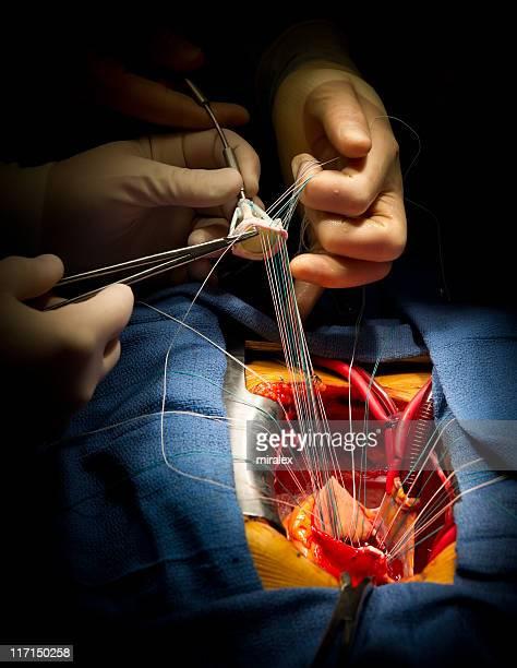 Herzoperation Aortenklappe Erneuerung
