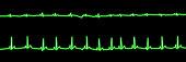 Heartbeat neon