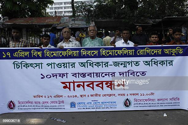 Hemophilia Welfare Foundation made human chain with Hemophilia patient in front of Press Club Dhaka on the ocassion of World Hemophilia Day World...