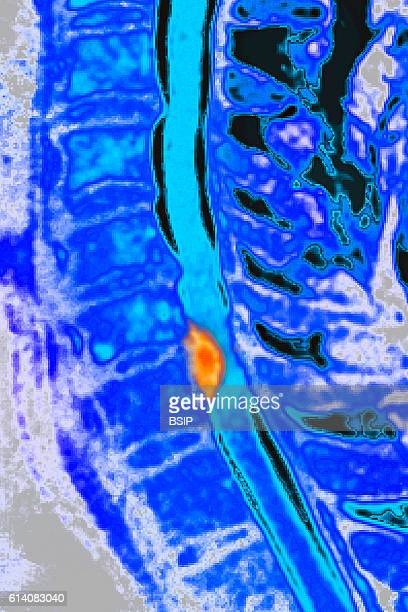 Herniated disk on the seventh cervical vertebra seen on a sagittal section MRI scan