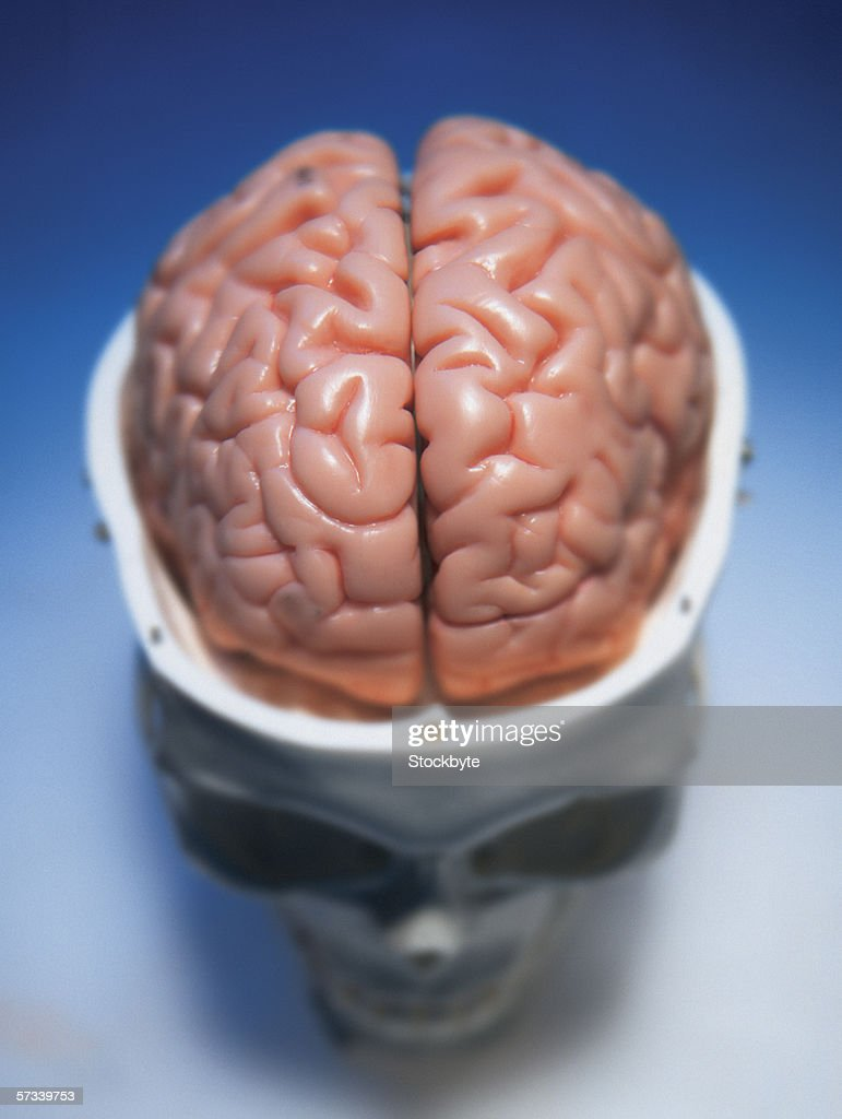 high angle view of a human skull with the brain exposed : Stock Photo