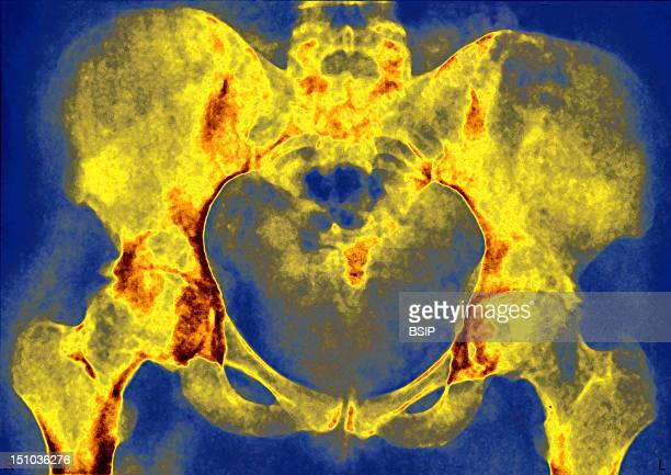 Hip Arthrosis Cowarthrosis Of The Hips X Ray Of The Hips In Front View