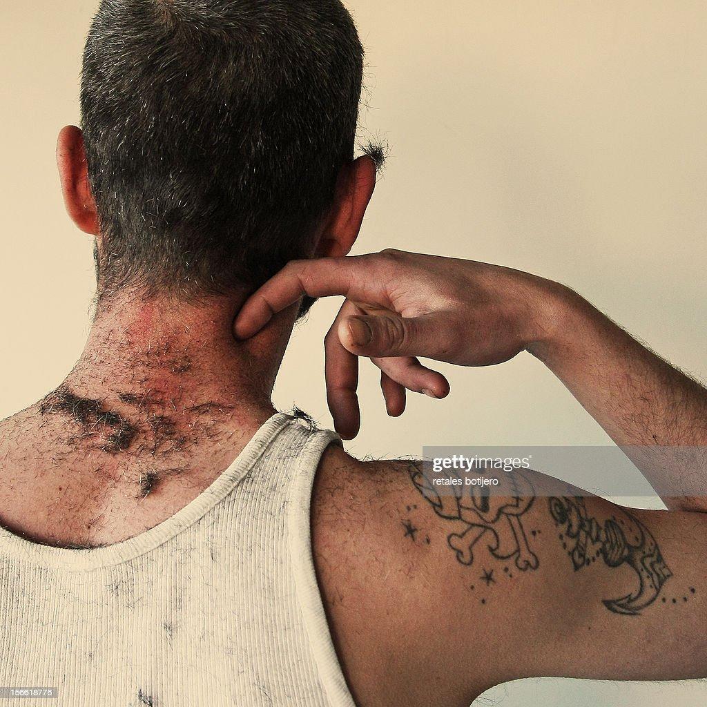 Hombre de espaldas rascandose el cuello : Stock Photo