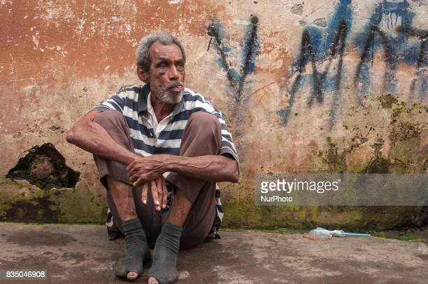 A homeless man with a black eye sits on the street in Granada Nicaragua on 25 October 2011