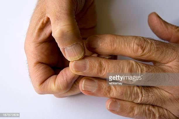Horrible hands