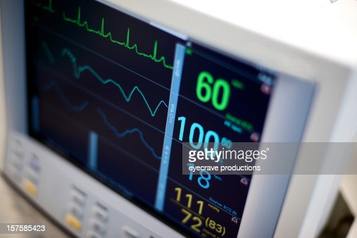 EKG hospital medical equipment vital statistics