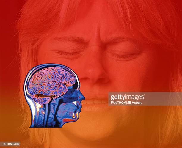 drawing of a brain on a woman's face wincing in pain