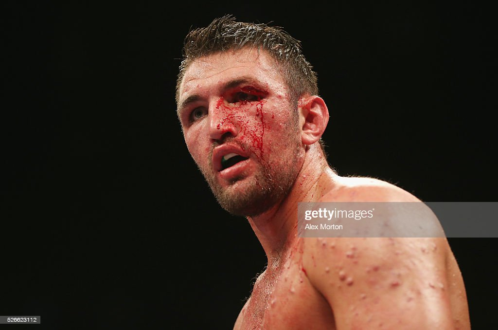 Hughie Fury with a cut eye during the vacant WBO Intercontinental Heavyweight Championship contest between Hughie Fury and Fred Kassi at Copper Box Arena on April 30, 2016 in London, England.
