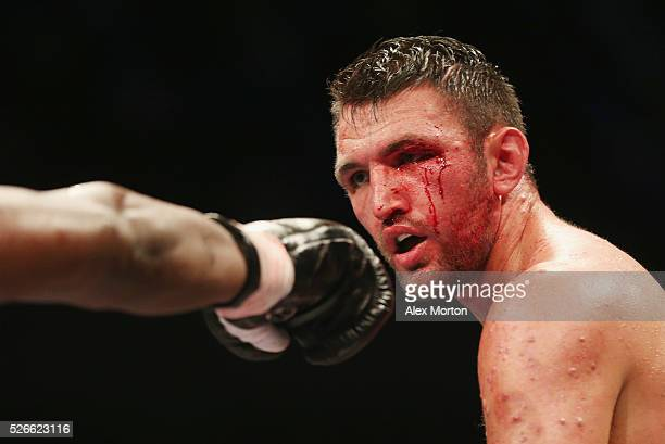 Hughie Fury with a cut eye during the vacant WBO Intercontinental Heavyweight Championship contest between Hughie Fury and Fred Kassi at Copper Box...