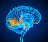 Human brain tumor X-ray scan , Medically accurate 3D illustration