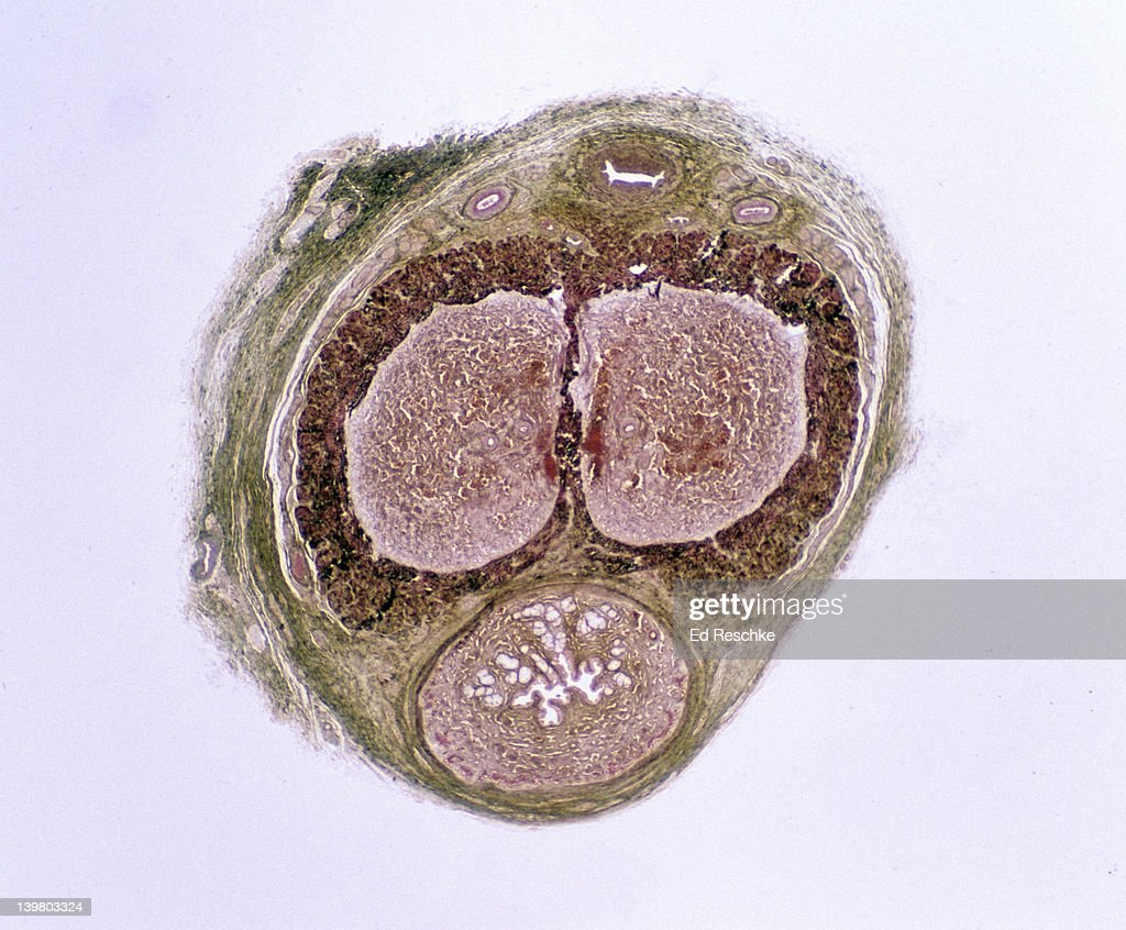 PENIS. Human, Cross Section, 2.5X at 35mm. Shows: Corpora cavernosa (2), corpus spongiosum, urethra, erectile tissue with vascular spaces, and dorsal blood vessels.