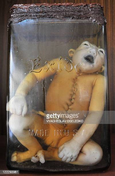 A human embryo is seen as part of an exhibition in a museum of a medical institute in Semipalatinsk some 50km from Kurchatovcity and 700 km from...